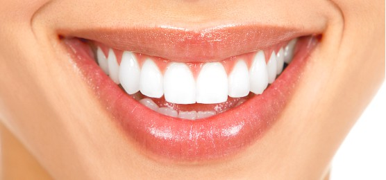 Bargara Teeth Whitening Bundaberg
