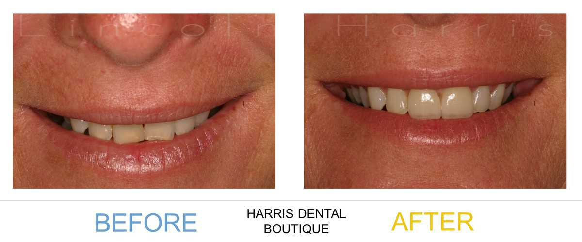 Considering Cosmetic Dentistry? Read this first!