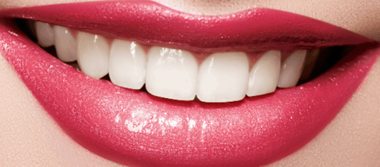 teeth whitening bundaberg