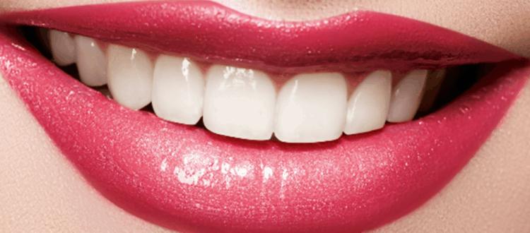 teeth whitening bundaberg